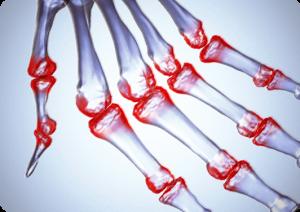 rheumatoid_arthritis_tr